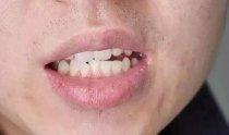 口干口苦是什么原因引起的